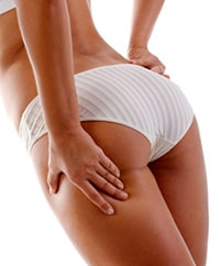 Buttock Augmentation Procedure