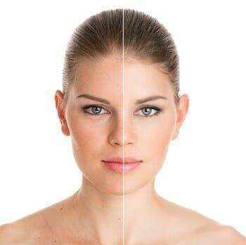 Botox vs. Dysport