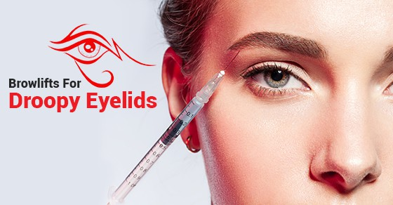 BOTOX Treatment For Droopy Eyelids
