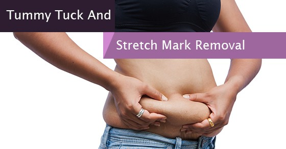 Can A Tummy Tuck Remove Stretch Marks On Hips