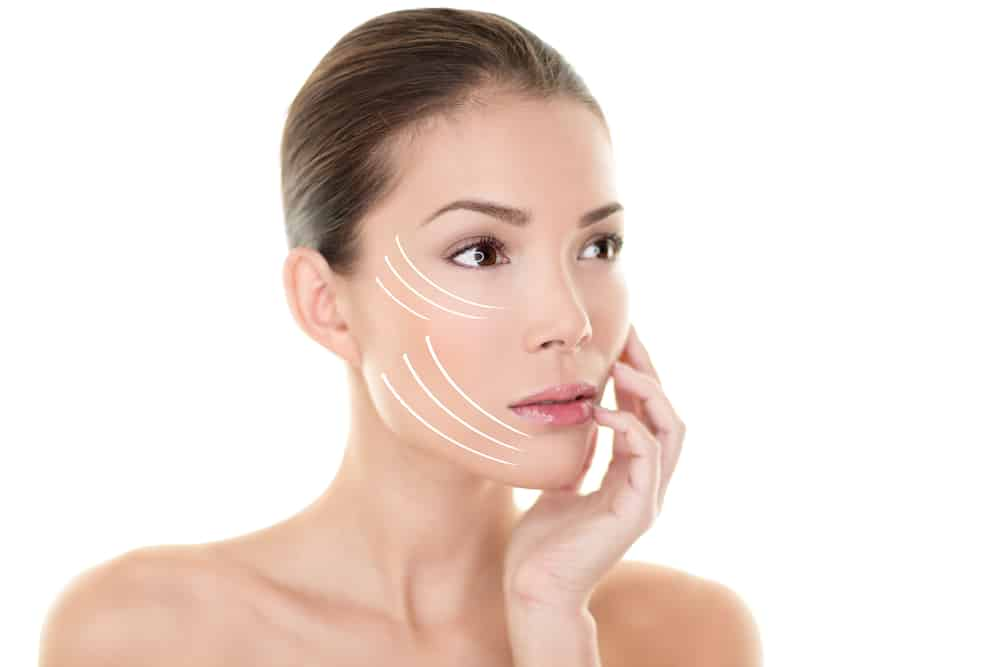 Facelift Procedure Guide