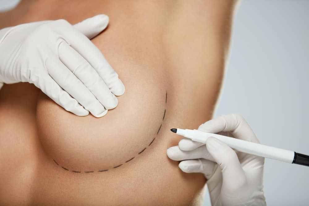 Breast Augmentation Candidate